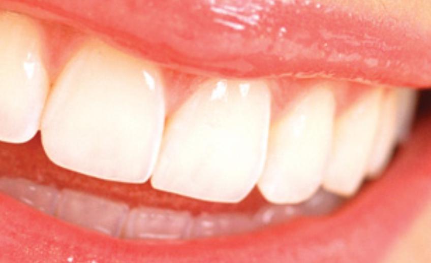dentisteria3