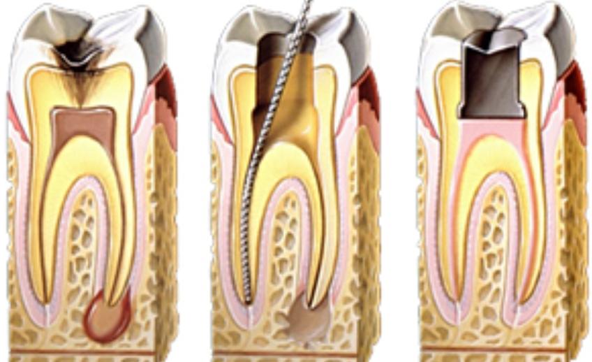 endodontia1
