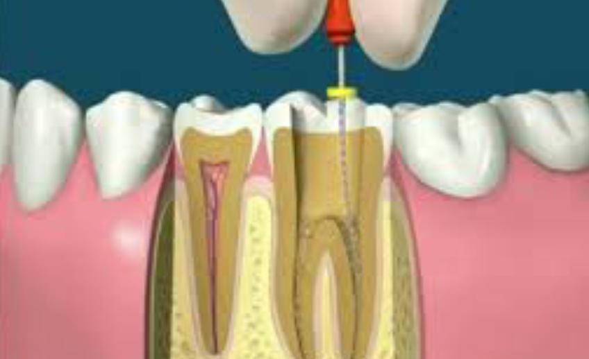 endodontia3