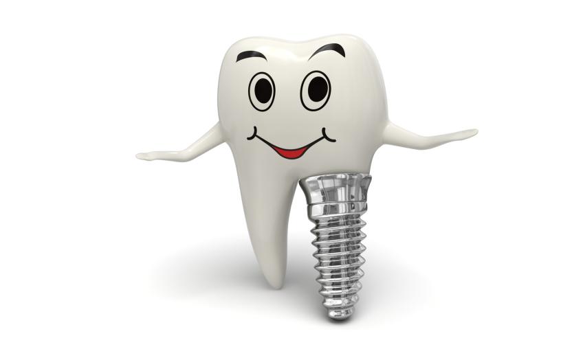 implantologia3