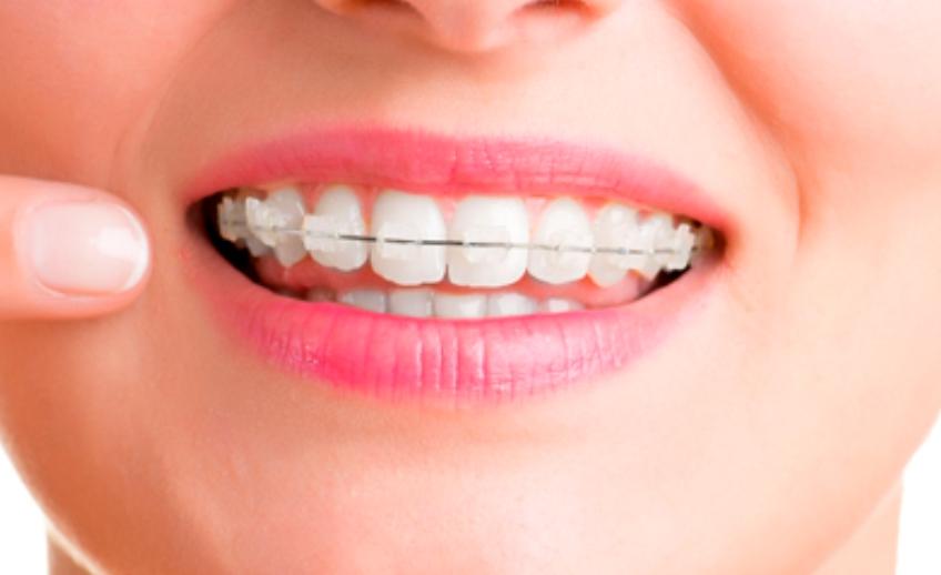 ortodontia2